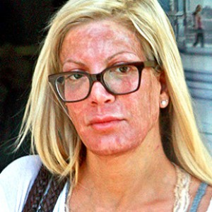 What Happened to Tori Spelling's Face?